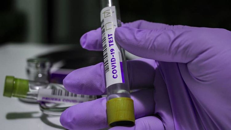 coronavirus-in-ukraine:-the-number-of-new-infections-has-gone-up-again