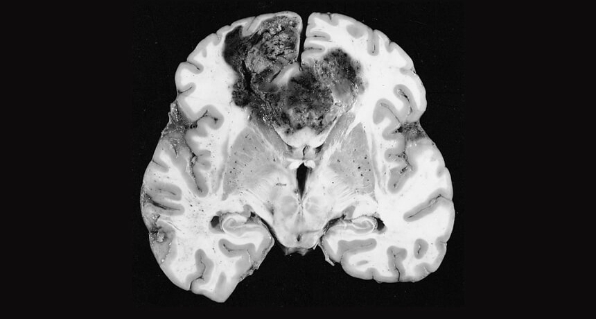 aggressive-glioblastoma-under-observation.-new-approaches-in-oncology
